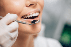 How-Often-Should-I-Get-a-Comprehensive-Dental-Exam